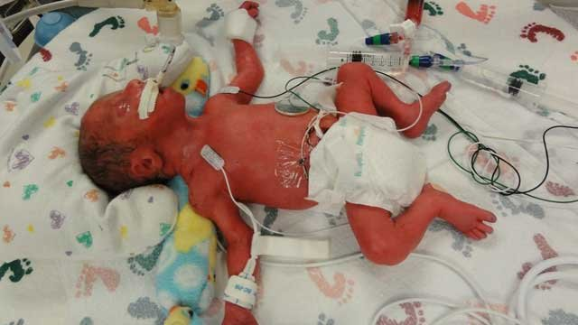 Quintuplets born in texas