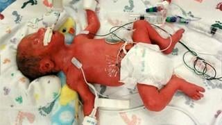 SLIDESHOW: 5 quintuplets born in 5 minutes