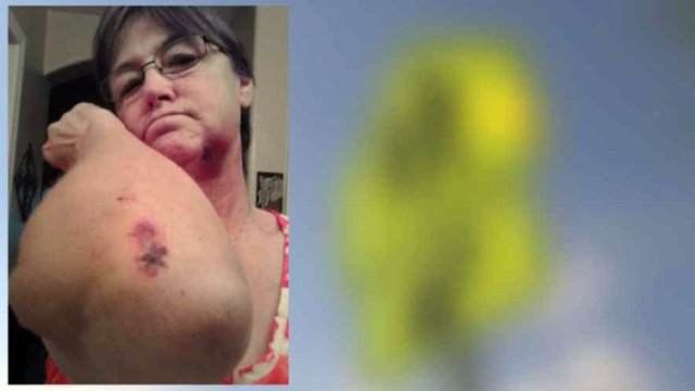 Kathi Sylvester said a man beat her after told him to slow down while she was performing her duties as a school crossing guard.