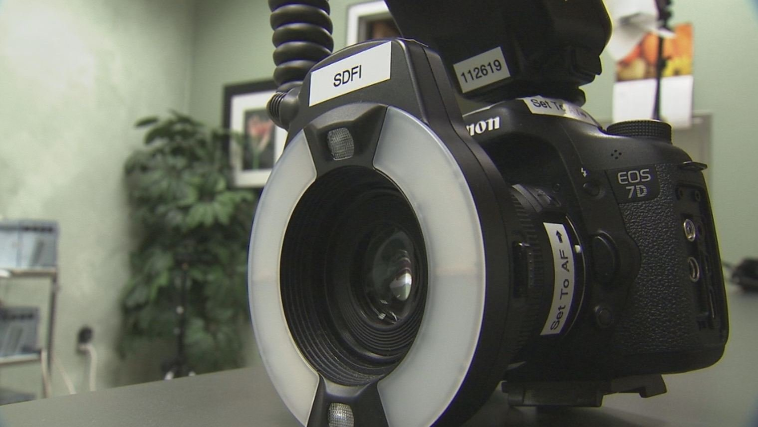 High-definition cameras are making it easier to see and document injuries to domestic abuse victims.