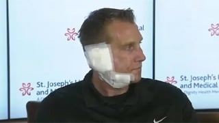 Officer Bennett appeared at the news briefing with bandages and his jaw wired shut.