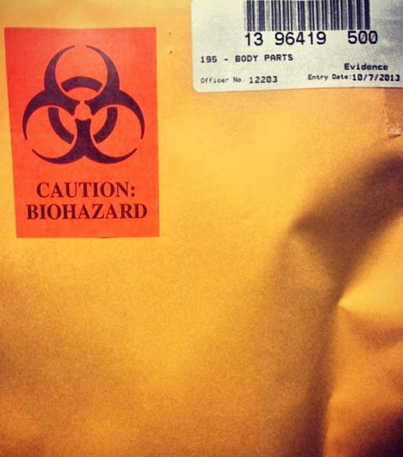 Evidence bio-hazard bag containing severed finger (Source: Glendale Police Department)