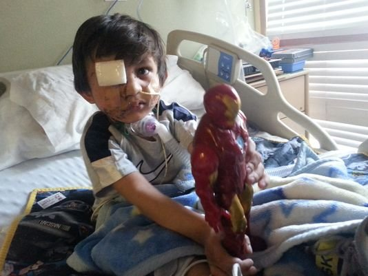 Kevin has gone through extensive surgeries, had a broken jaw and lost an eye. (Source: Vicente family photo)