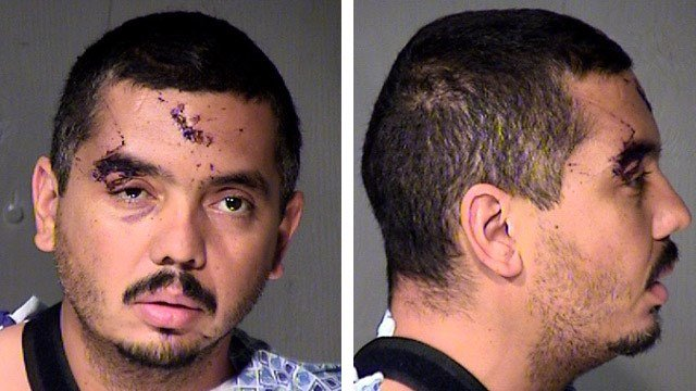 A lab analysis of Edwin Hurt's blood showed his blood-alcohol level at 0.317 percent, according to the document. The state's legal limit is 0.08 percent. (Source: Maricopa County Sheriff's Office)
